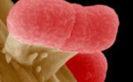 Bùng phát dịch E.coli do vi khuẩn mới, cực độc