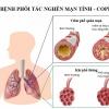 Tập huấn phòng, chống bệnh phổi tắc nghẽn mạn tính và hen phế quản