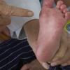 Bệnh tay chân miệng tăng trên 124% so cùng kỳ