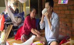 Hoàn cảnh anh Lê Minh Nhựt- phẫu thuật ghép xương – An Thái Trung – Cái Bè -Tiền Giang