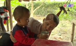Hoàn cảnh anh Nguyễn Thanh Tùng – ráp hộp sọ sau chấn thương sọ não